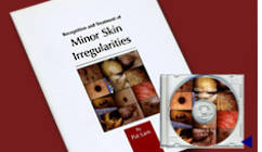 Minor Skin Irregularities Book